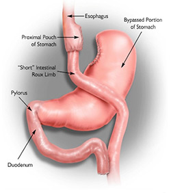 Roux-en-Y Stomach Bypass